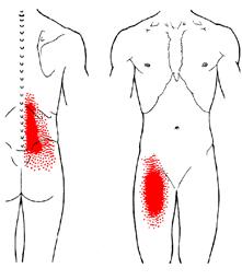 iliopsoas pain